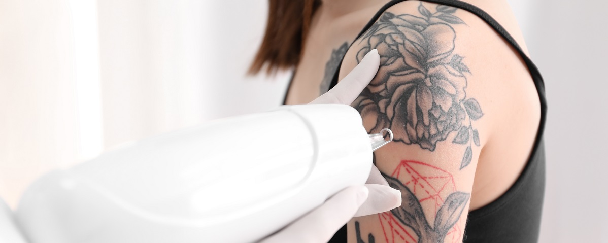 Tattoo Removal Pre-Treatment