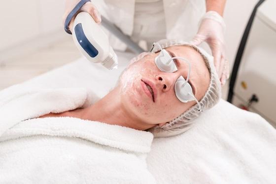 acne treatment ipl