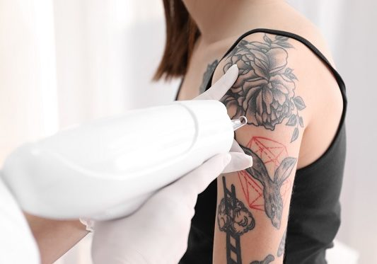 tattoo removal faq