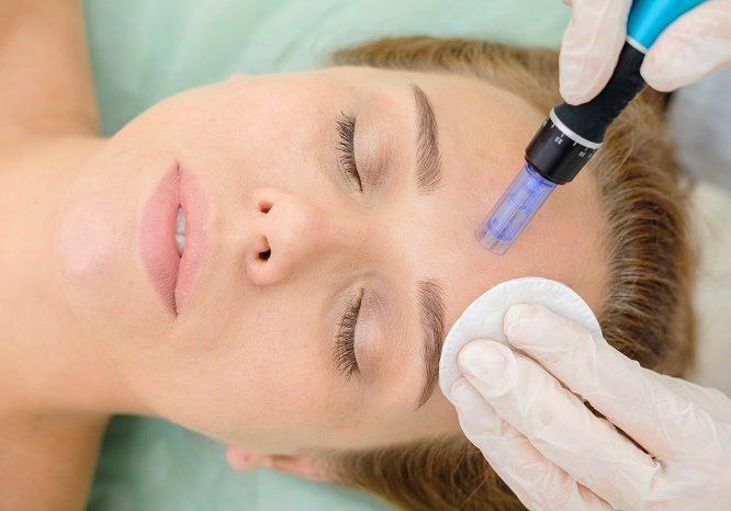 woman skin needling